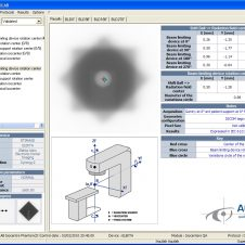 aquilab---artiscan---isocenters-qa_5496079535_o